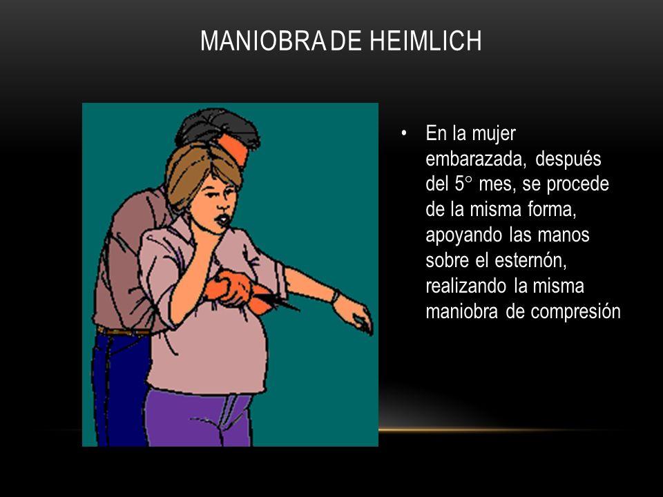 MANIOBRA DE HEIMLICH En la mujer embarazada, después del 5° mes, se procede de la misma forma, apoyando las manos sobre el esternón, realizando la mis