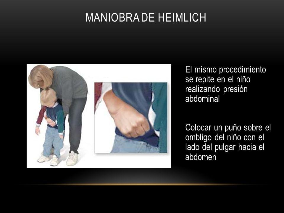 MANIOBRA DE HEIMLICH El mismo procedimiento se repite en el niño realizando presión abdominal Colocar un puño sobre el ombligo del niño con el lado de