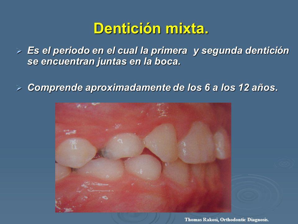 Dentición mixta. Dentición mixta. Es el periodo en el cual la primera y segunda dentición se encuentran juntas en la boca. Es el periodo en el cual la