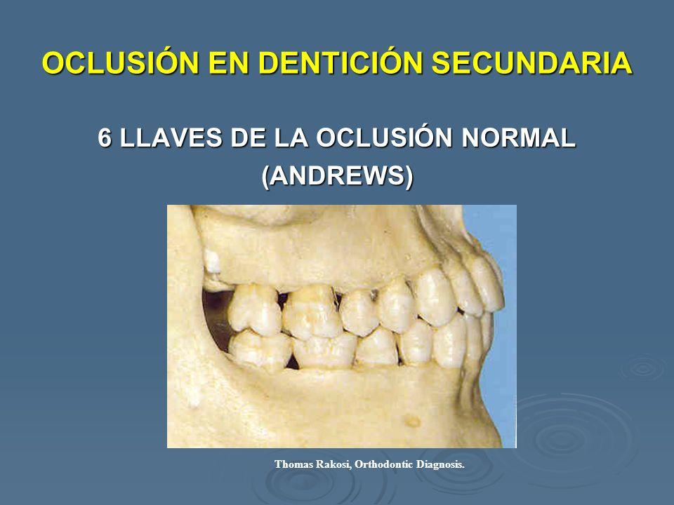 OCLUSIÓN EN DENTICIÓN SECUNDARIA 6 LLAVES DE LA OCLUSIÓN NORMAL (ANDREWS) Thomas Rakosi, Orthodontic Diagnosis.