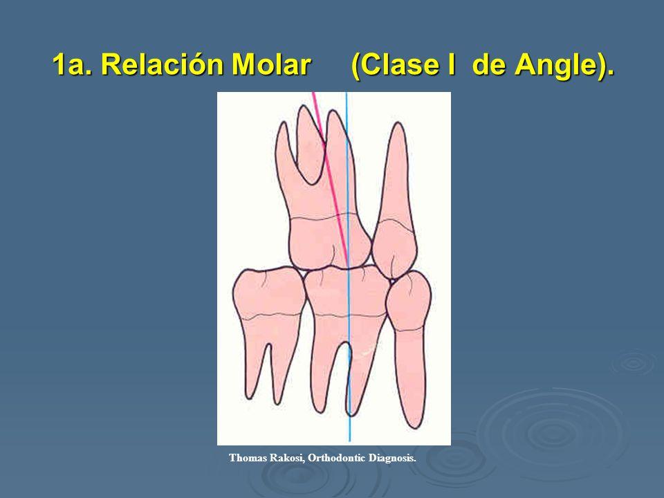1a. Relación Molar (Clase I de Angle). Thomas Rakosi, Orthodontic Diagnosis.