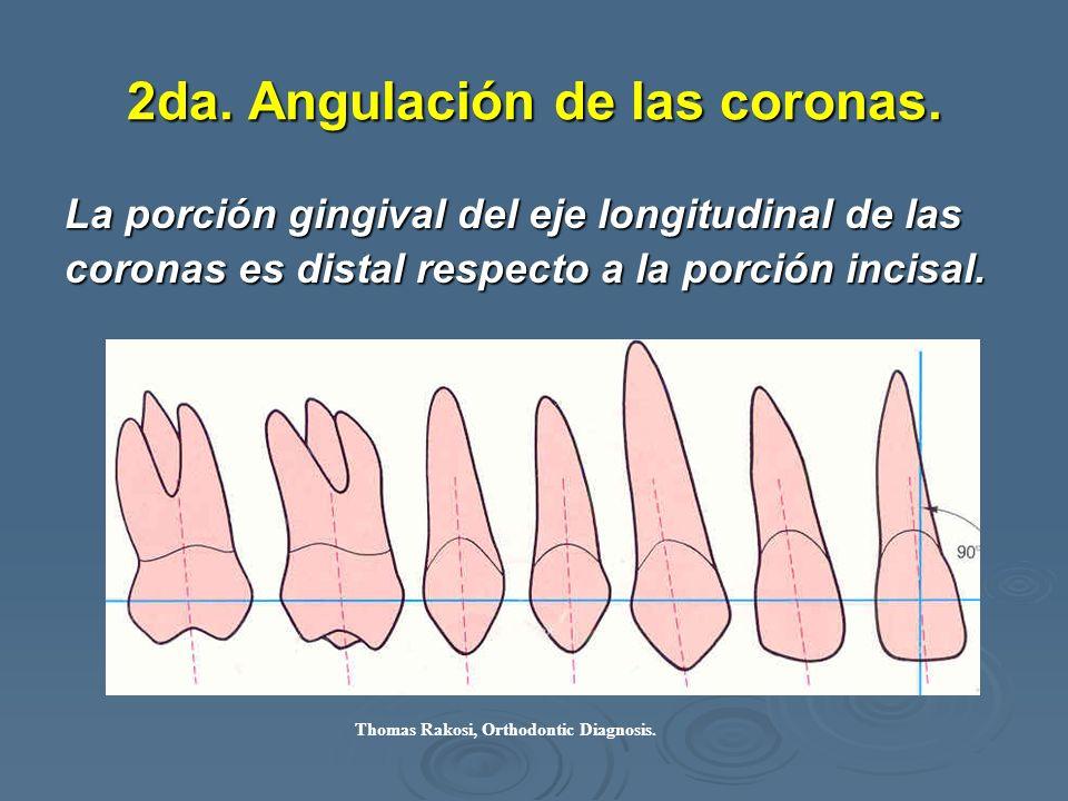 2da. Angulación de las coronas. La porción gingival del eje longitudinal de las coronas es distal respecto a la porción incisal. Thomas Rakosi, Orthod