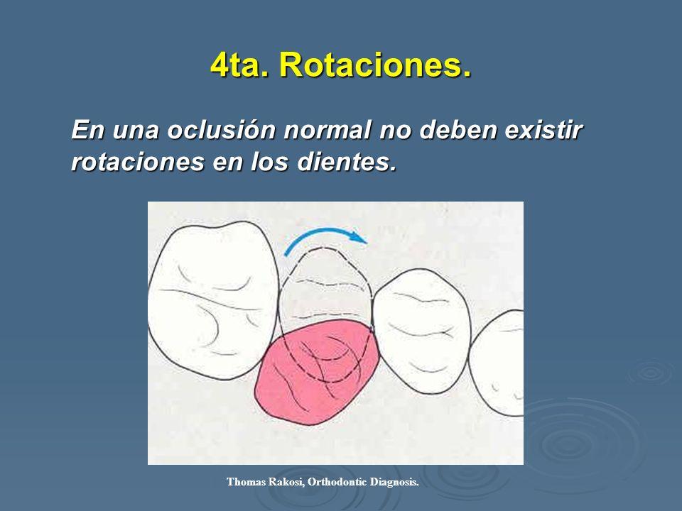 4ta. Rotaciones. En una oclusión normal no deben existir rotaciones en los dientes. Thomas Rakosi, Orthodontic Diagnosis.