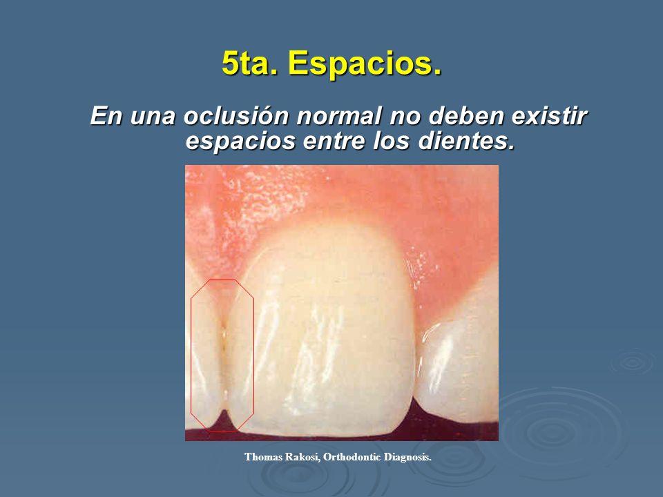 5ta. Espacios. En una oclusión normal no deben existir espacios entre los dientes. Thomas Rakosi, Orthodontic Diagnosis.
