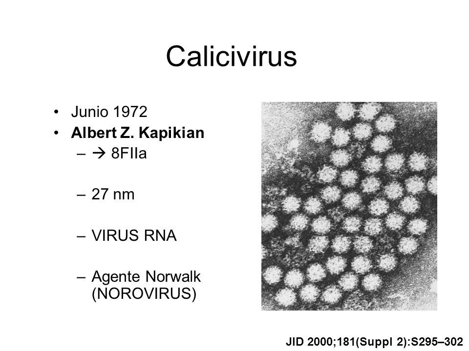 Calicivirus Junio 1972 Albert Z. Kapikian – 8FIIa –27 nm –VIRUS RNA –Agente Norwalk (NOROVIRUS) JID 2000;181(Suppl 2):S295–302