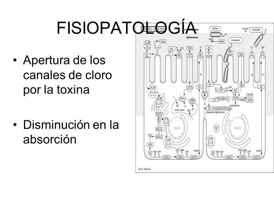 FISIOPATOLOGÍA Apertura de los canales de cloro por la toxina Disminución en la absorción
