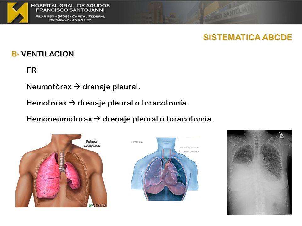 SISTEMATICA ABCDE B- VENTILACION FR Neumotórax drenaje pleural. Hemotórax drenaje pleural o toracotomía. Hemoneumotórax drenaje pleural o toracotomía.