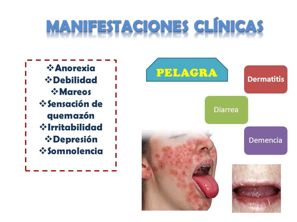 DermatitisDiarreaDemencia Anorexia Debilidad Mareos Sensación de quemazón Irritabilidad Depresión Somnolencia PELAGRA