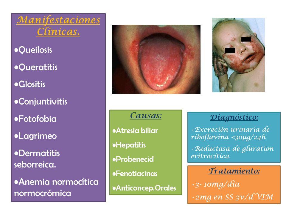 Manifestaciones Clínicas. Queilosis Queratitis Glositis Conjuntivitis Fotofobia Lagrimeo Dermatitis seborreica. Anemia normocítica normocrómica Causas