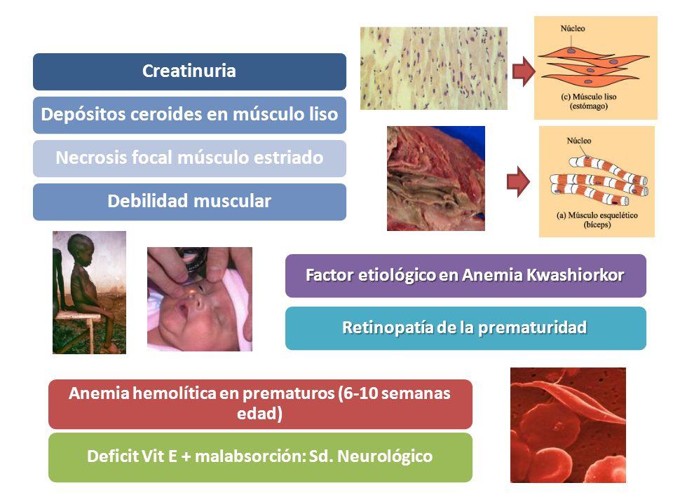 CreatinuriaDepósitos ceroides en músculo lisoNecrosis focal músculo estriadoDebilidad muscular Factor etiológico en Anemia Kwashiorkor Retinopatía de