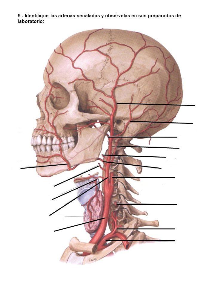 10.- Identifique los segmentos de la arteria señalada, indicando brevemente su territorio de distribución y discútalos con sus compañeros de mesa: