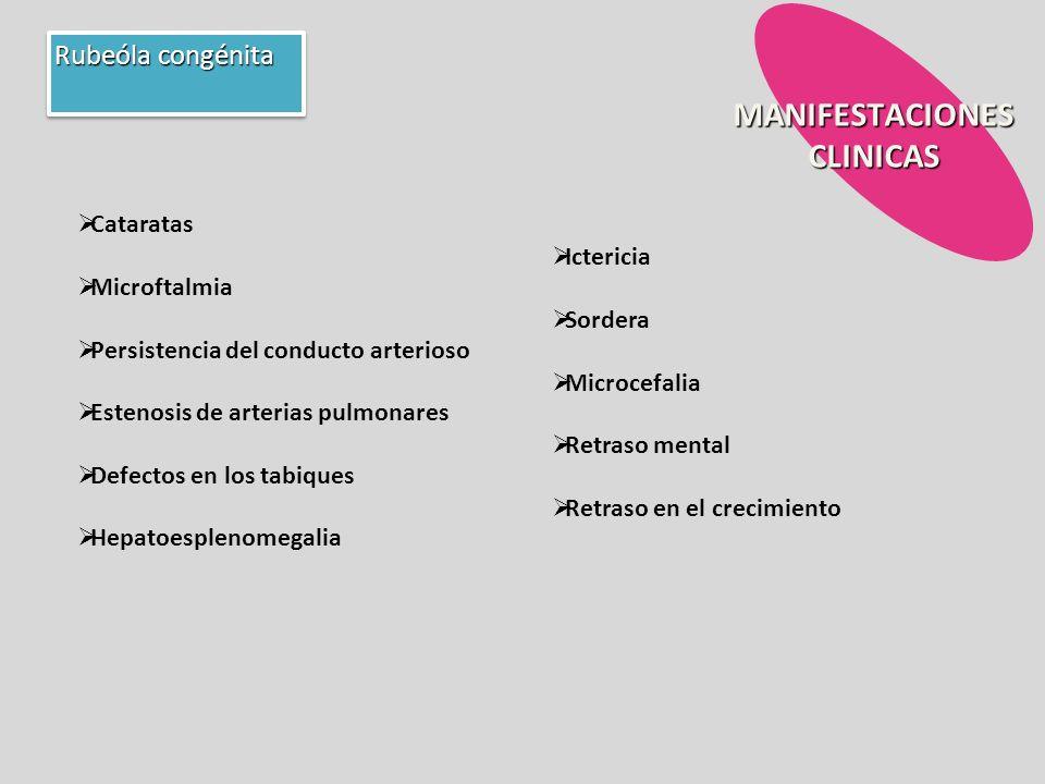 MANIFESTACIONES CLINICAS Rubeóla congénita Cataratas Microftalmia Persistencia del conducto arterioso Estenosis de arterias pulmonares Defectos en los