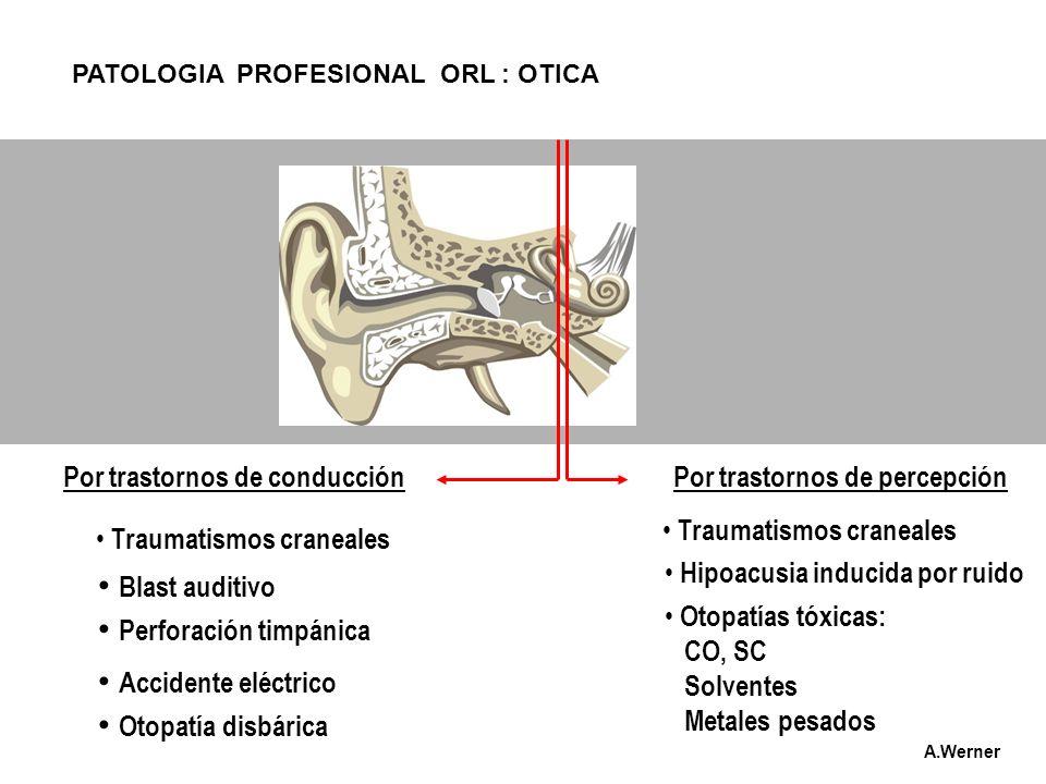 PATOLOGIA PROFESIONAL ORL : OTICA Por trastornos de conducciónPor trastornos de percepción Traumatismos craneales Traumatismos craneales Hipoacusia in