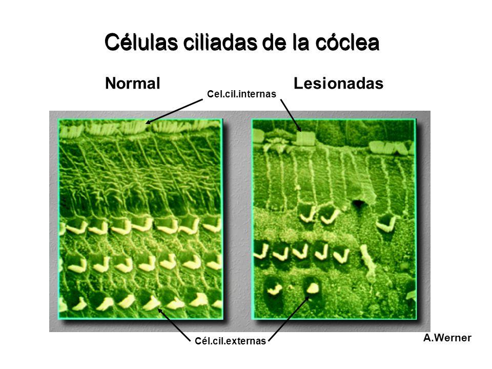 Células ciliadas de la cóclea Normal Cel.cil.internas Cél.cil.externas Lesionadas A.Werner