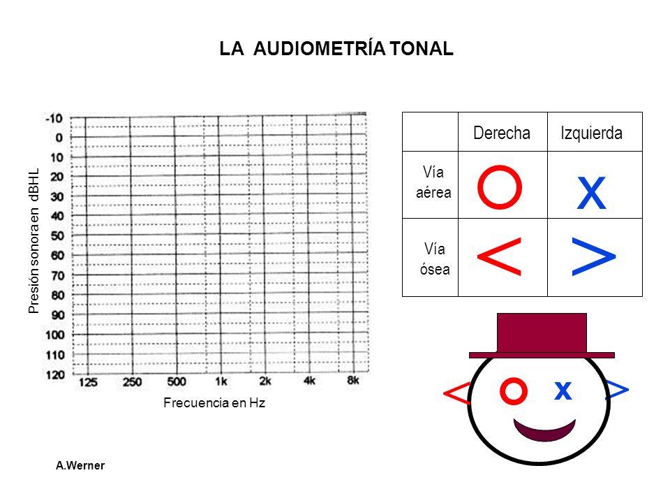 > LA AUDIOMETRÍA TONAL Frecuencia en Hz Presión sonora en dBHL Derecha Izquierda Vía aérea Vía ósea x <> x < A.Werner