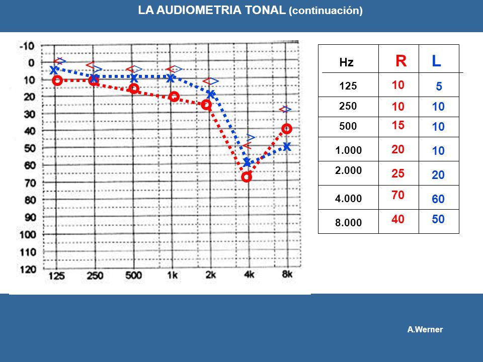 RL 125 250 10 500 1.000 Hz 2.000 4.000 8.000 10 15 20 25 70 40 x xxx x x x 5 10 20 60 50 LA AUDIOMETRIA TONAL (continuación) A.Werner < < << < < < > >