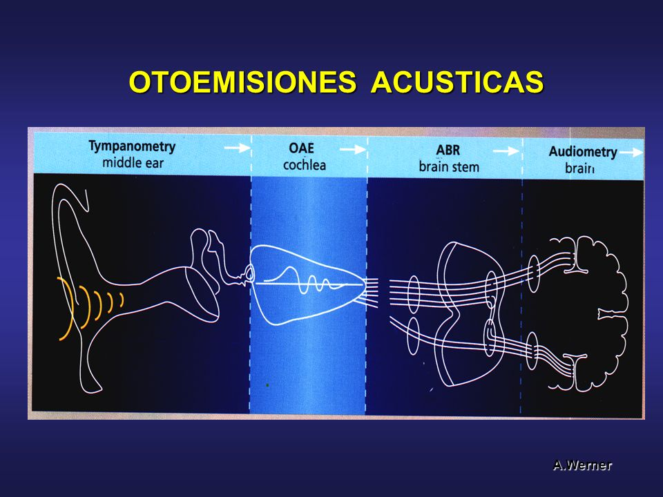 OTOEMISIONES ACUSTICAS A.Werner