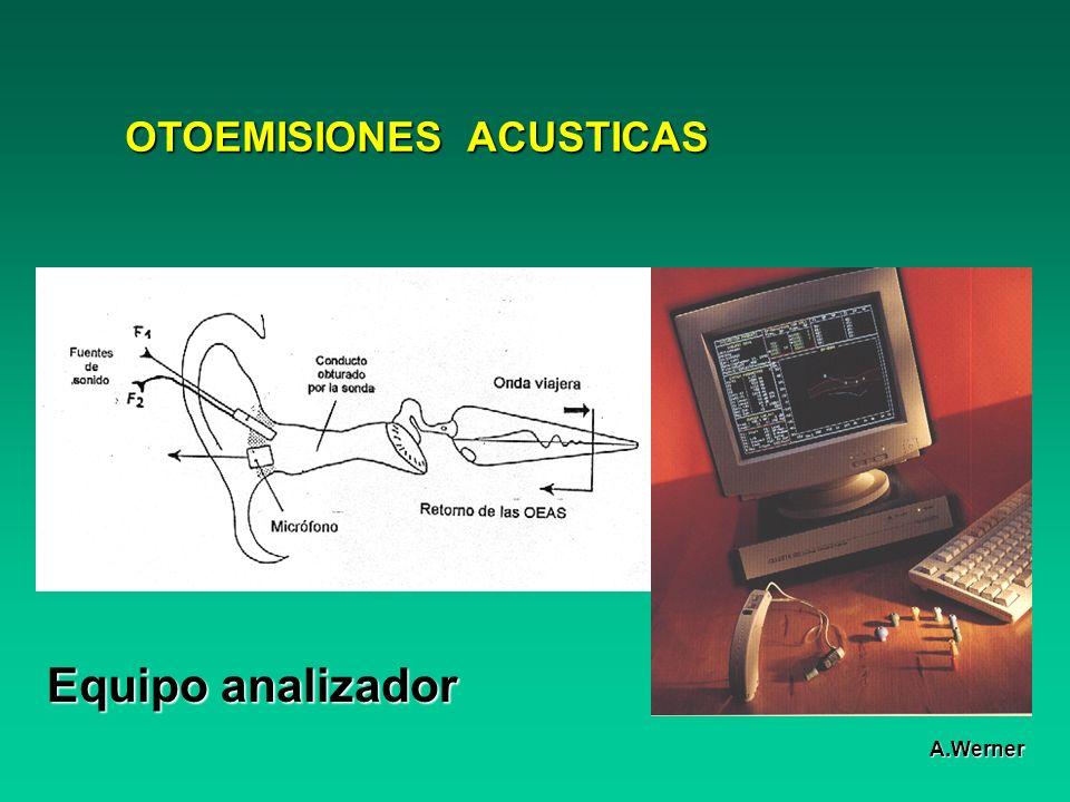 OTOEMISIONES ACUSTICAS Equipo analizador A.Werner