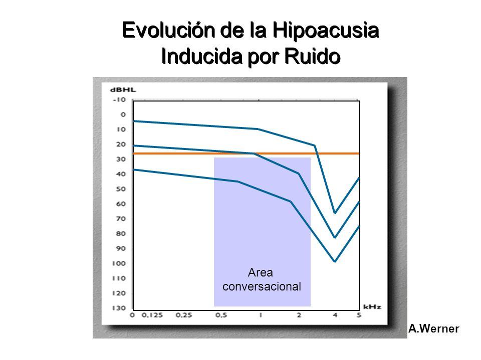 Evolución de la Hipoacusia Inducida por Ruido Evolución de la Hipoacusia Inducida por Ruido A.Werner Area conversacional