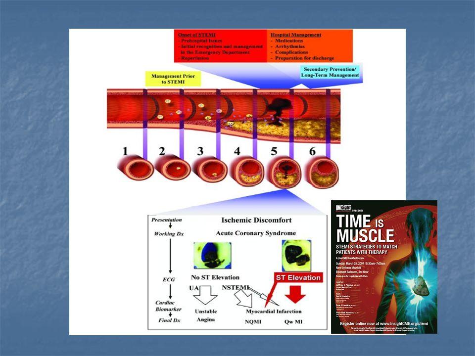 VENTAJAS : Método mas efectivo TIMI 3E: VENTAJAS : Método mas efectivo TIMI 3E: Realizable la mayoría de la población (>90%).
