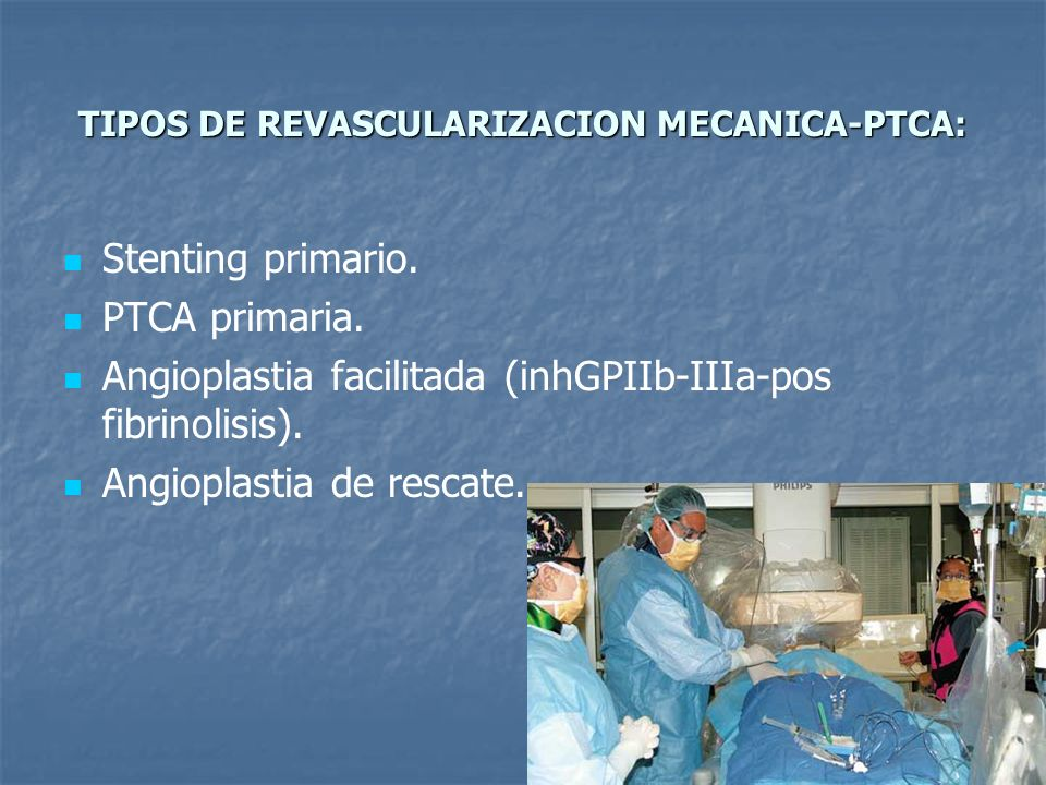 TIPOS DE REVASCULARIZACION MECANICA-PTCA: Stenting primario. PTCA primaria. Angioplastia facilitada (inhGPIIb-IIIa-pos fibrinolisis). Angioplastia de