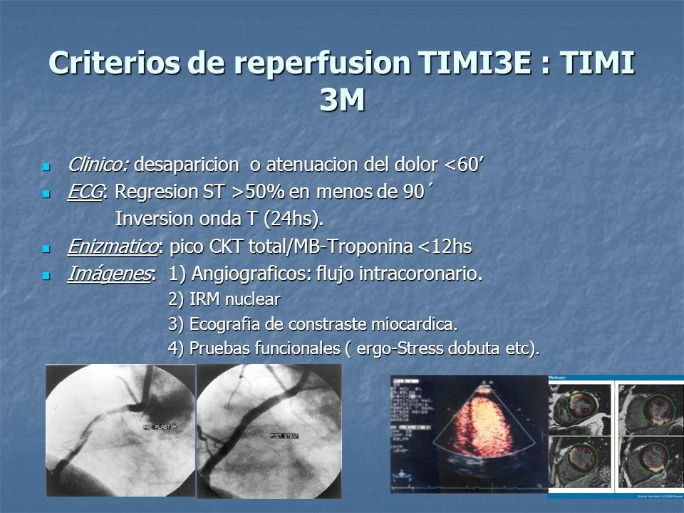 Criterios de reperfusion TIMI3E : TIMI 3M Clinico: desaparicion o atenuacion del dolor <60 Clinico: desaparicion o atenuacion del dolor <60 ECG: Regre