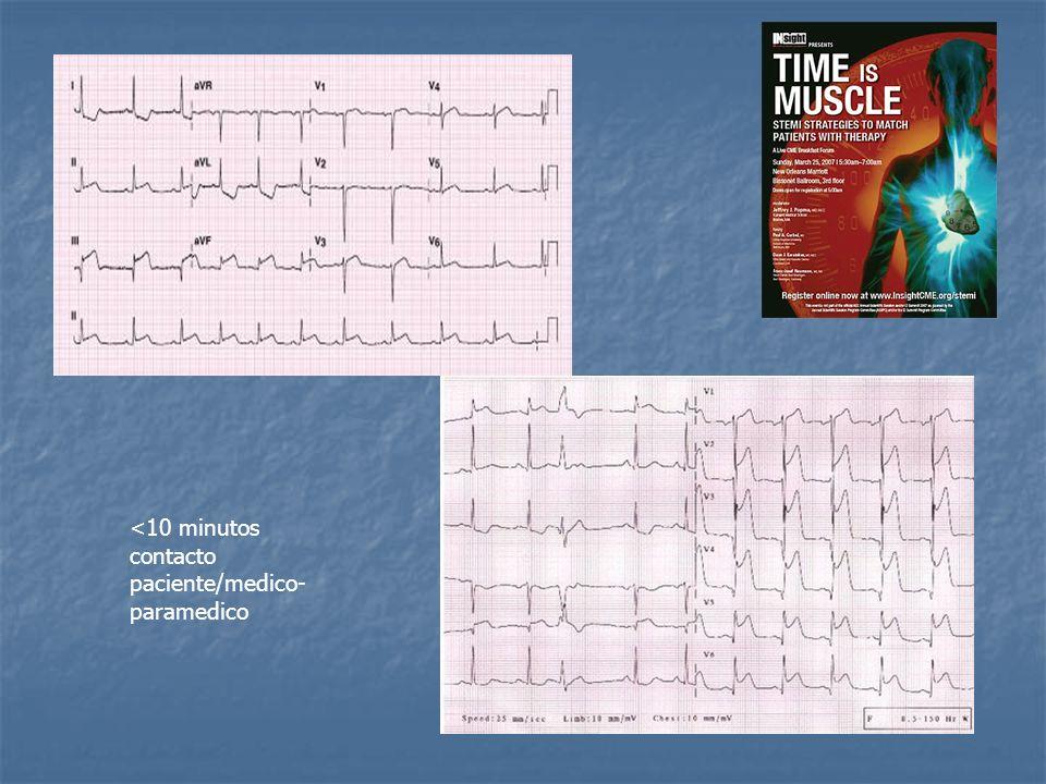 AGENTES FIBRINOLITICOS - criterio de reperfusion Clinico: desaparicion o atenuacion del dolor <60 Clinico: desaparicion o atenuacion del dolor <60 ECG: Regresion ST >50% en menos de 90´ ECG: Regresion ST >50% en menos de 90´ Inversion onda T (24hs).