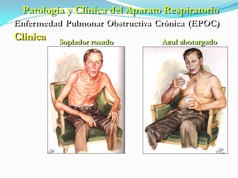 Clínica Historia de tabaquismo importante Tos productiva Esputo mucoso o purulento Disnea Cianosis Sibilancias Perdida de peso Cefalea matutina Signos