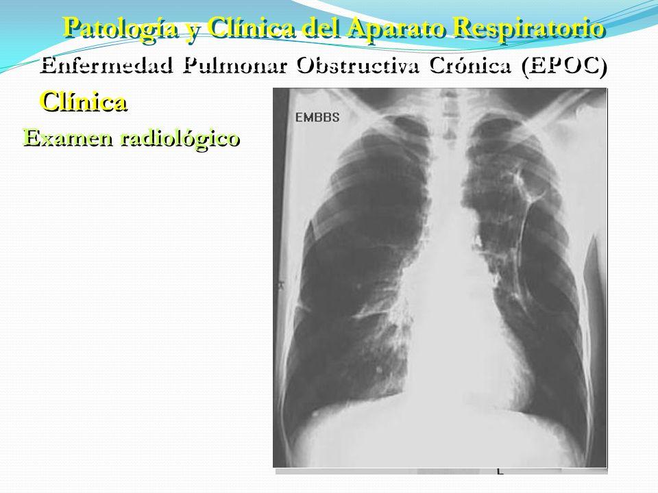 Patología y Clínica del Aparato Respiratorio Enfermedad Pulmonar Obstructiva Crónica (EPOC) Clínica Soplador rosado Azul abotargado