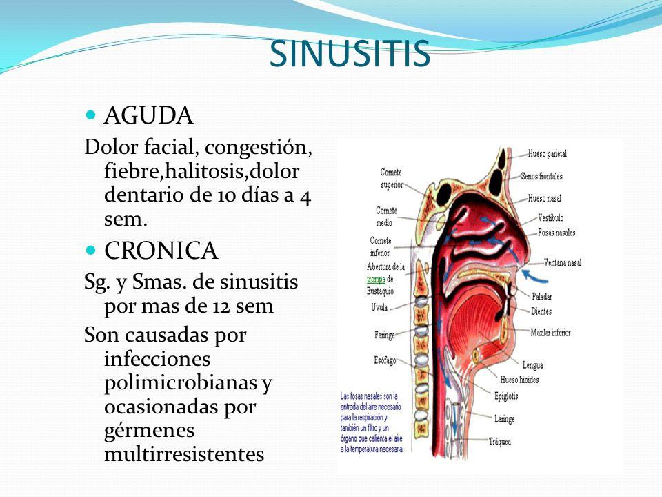 Cualquier afección que se localice en la VAS, se denominan con la estructura a la cual afecte
