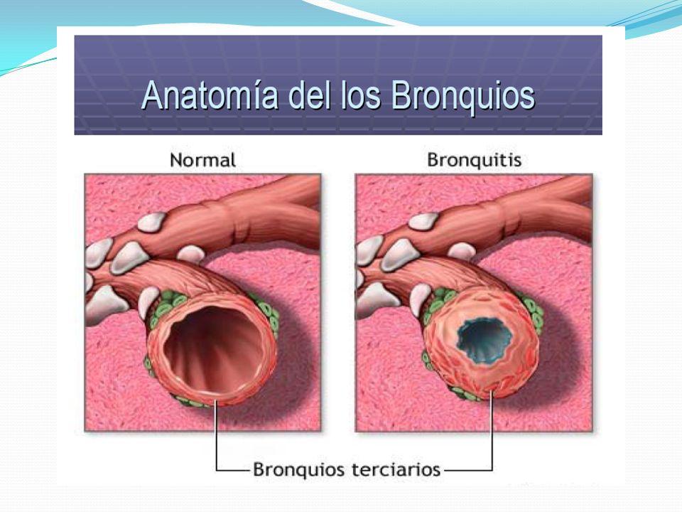 LARINGITIS Inflamación de la mucosa de la laringe. Se caracteriza por la inflamación de las cuerdas vocales y dificultad para hablar Complicaciones: s