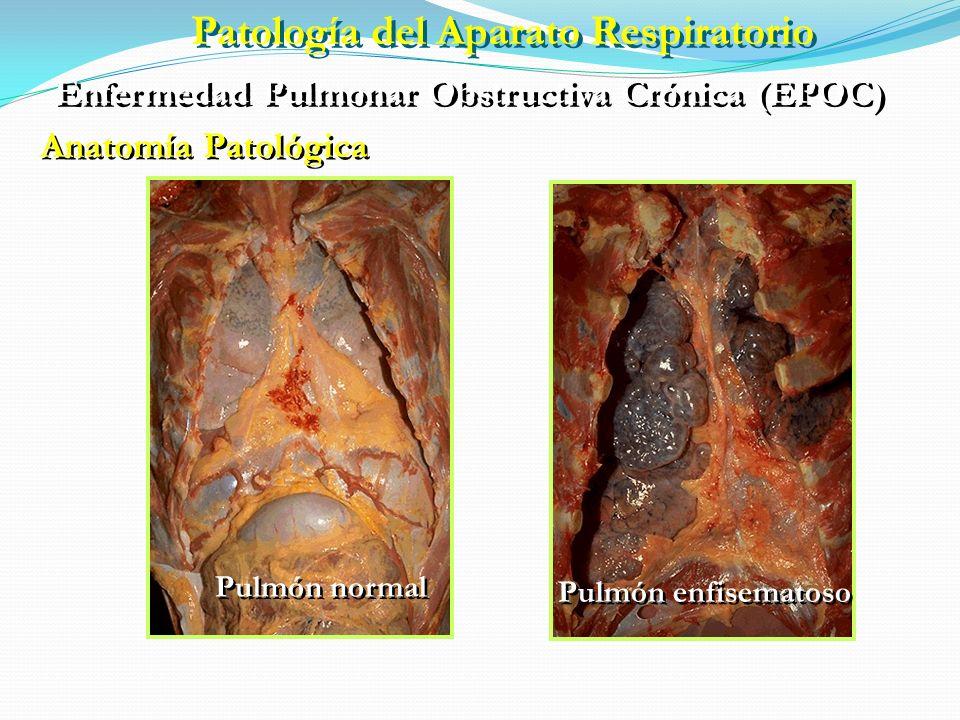 Enfermedad Pulmonar Obstructiva Crónica (EPOC) ETIOPATOGENIA FACTORES DE RIESGO Ambientales Genéticos Tabaquismo Polución Profesión Infecciones Incide