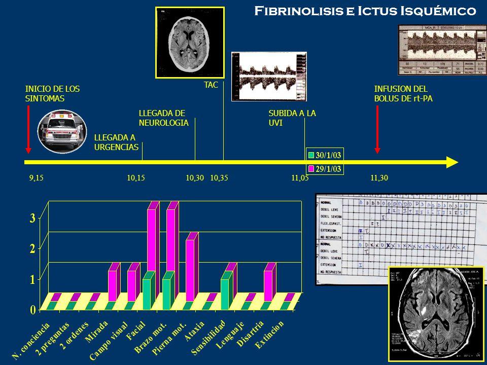 9,1510,15 10,30 10,35 11,0511,30 INICIO DE LOS SINTOMAS LLEGADA A URGENCIAS LLEGADA DE NEUROLOGIA TAC SUBIDA A LA UVI INFUSION DEL BOLUS DE rt-PA Fibr