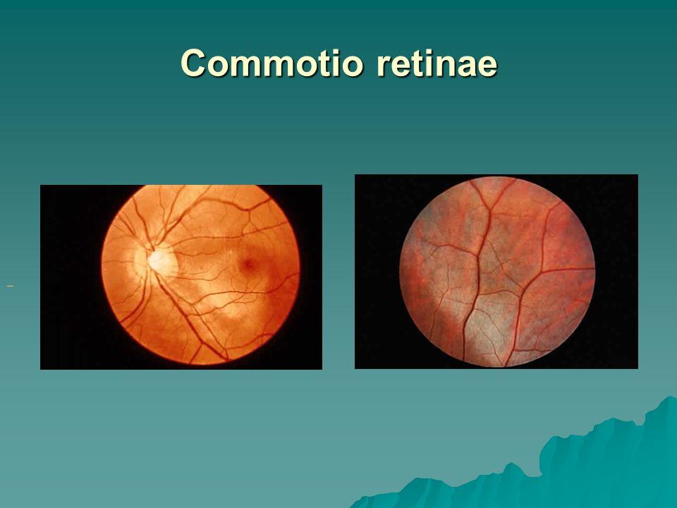 Commotio Retinae Oct