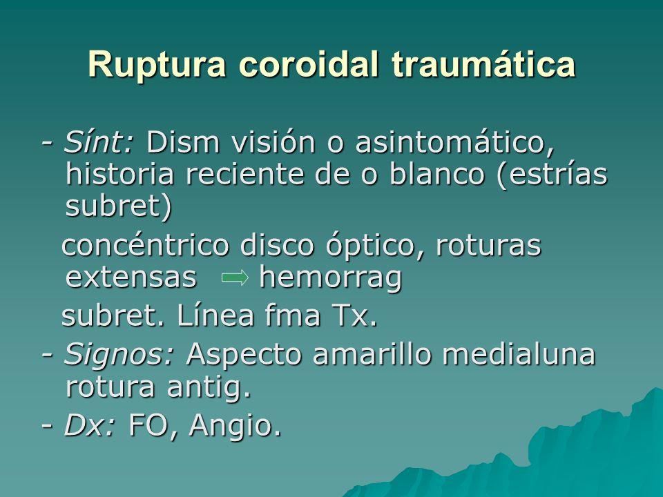 Ruptura coroidal traumática - Sínt: Dism visión o asintomático, historia reciente de o blanco (estrías subret) concéntrico disco óptico, roturas exten