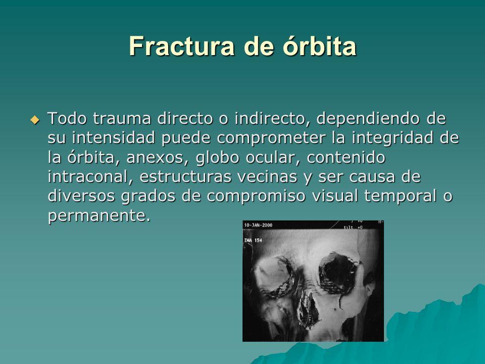 Fractura de órbita Todo trauma directo o indirecto, dependiendo de su intensidad puede comprometer la integridad de la órbita, anexos, globo ocular, c