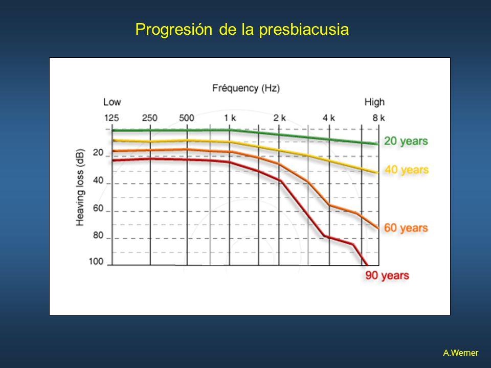 Progresión de la presbiacusia A.Werner