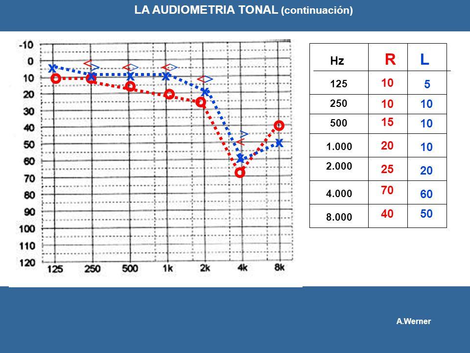RL 125 250 10 500 1.000 Hz 2.000 4.000 8.000 10 15 20 25 70 40 x xxx x x x 5 10 20 60 50 LA AUDIOMETRIA TONAL (continuación) A.Werner < << < < >>> > >
