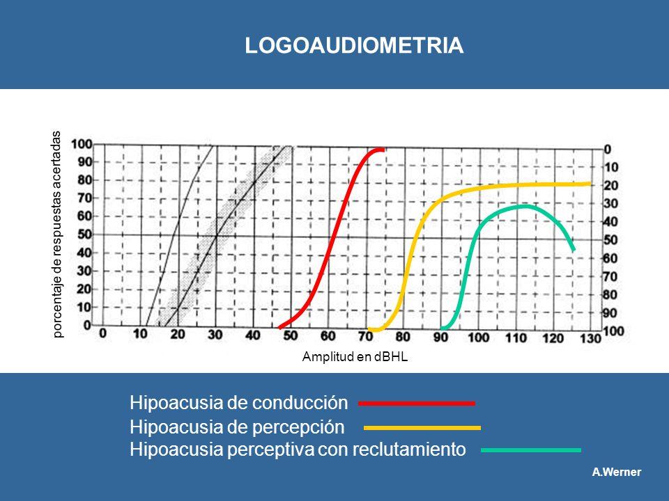 Hipoacusia de conducción Hipoacusia de percepción Hipoacusia perceptiva con reclutamiento LOGOAUDIOMETRIA porcentaje de respuestas acertadas Amplitud