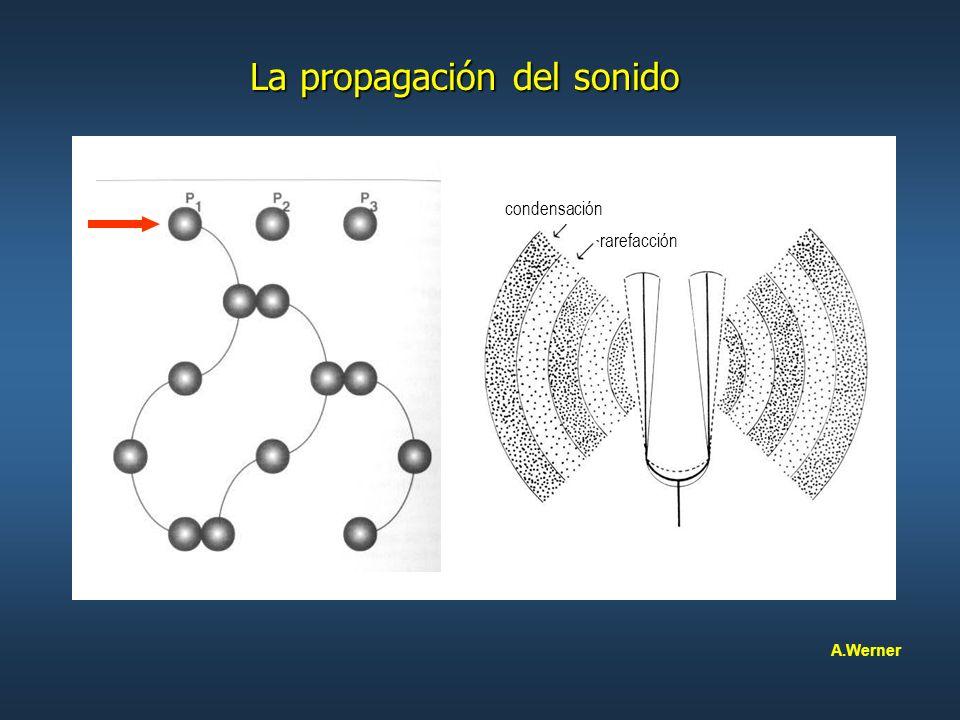 Otoemisiones acústicas transitorias evocadas Aplicaciones clínicas Aplicaciones clínicas A.Werner Estímulo click con ruido blanco Estímulo click con ruido blanco Presentes en el 100 % de oídos sanos Presentes en el 100 % de oídos sanos Desaparecen cuando el umbral supera los 25 dB Desaparecen cuando el umbral supera los 25 dB Patrón de respuesta frecuencial reproductible Patrón de respuesta frecuencial reproductible Frecuencias = 500 Hz a 3.000 Hz Frecuencias = 500 Hz a 3.000 Hz A medida que aumenta la intensidad del estímulo, A medida que aumenta la intensidad del estímulo, la respuesta aumenta en forma no-lineal la respuesta aumenta en forma no-lineal