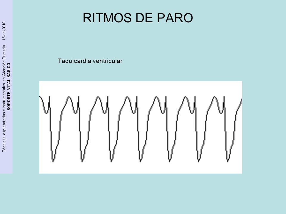 RITMOS DE PARO Taquicardia ventricular