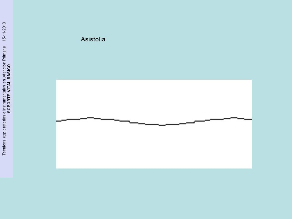 Técnicas exploratorias e instrumentales en Atención Primaria. 15-11-2010 SOPORTE VITAL BASICO Asistolia