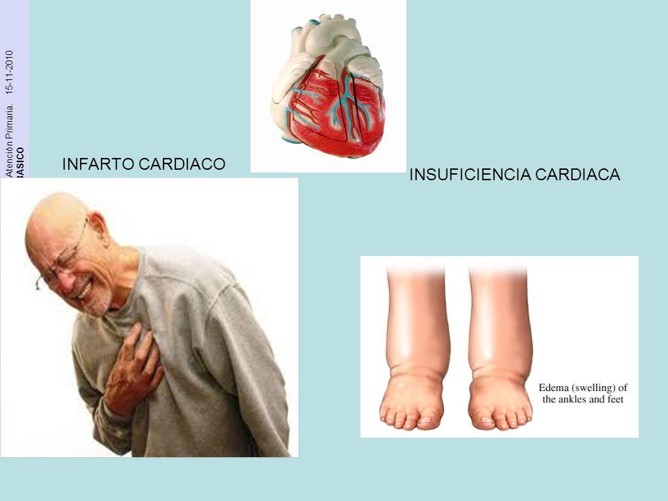 INFARTO CARDIACO INSUFICIENCIA CARDIACA