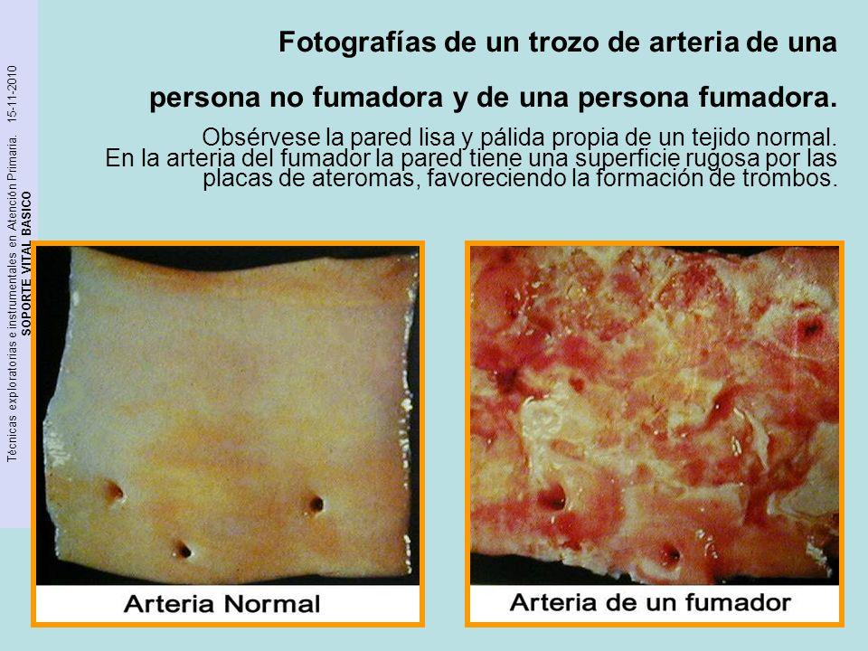 Técnicas exploratorias e instrumentales en Atención Primaria. 15-11-2010 SOPORTE VITAL BASICO Fotografías de un trozo de arteria de una persona no fum