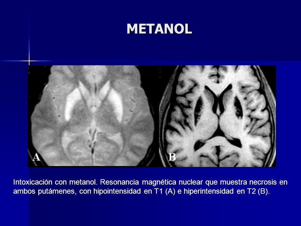 METANOL Intoxicación con metanol. Resonancia magnética nuclear que muestra necrosis en ambos putámenes, con hipointensidad en T1 (A) e hiperintensidad