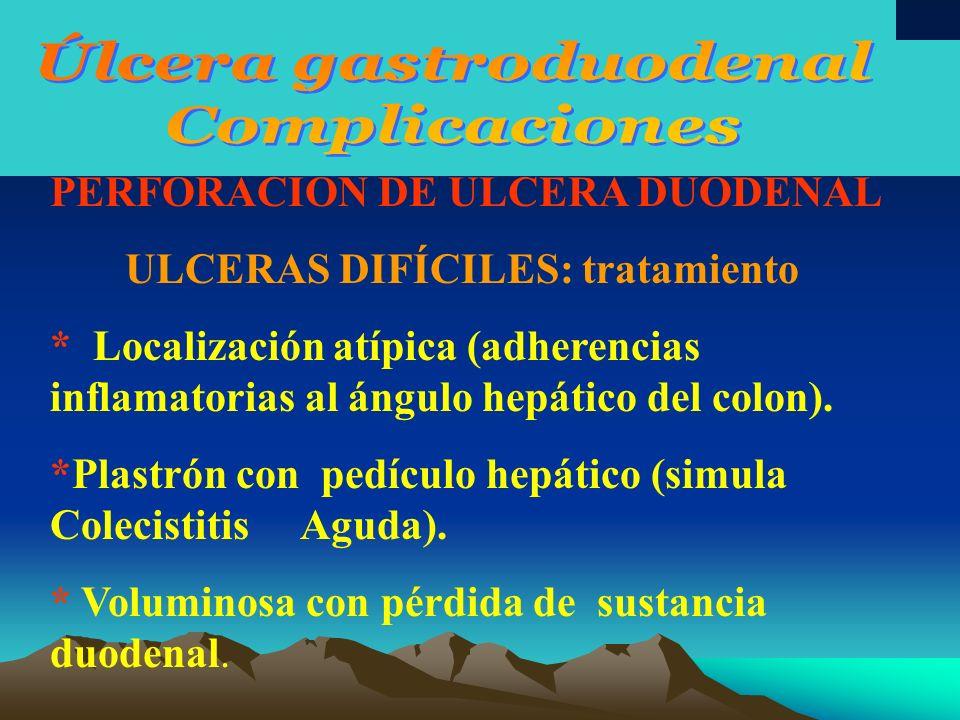 PERFORACIÓN DE ULCERA DUODENAL TRATAMIENTO *Sutura de la ulcera más vagotomía con gastroyeyunostomia.