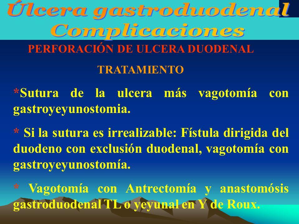 PERFORACIÓN DE ULCERA DUODENAL