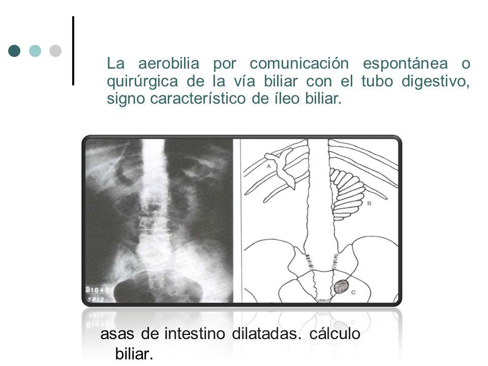 asas de intestino dilatadas. cálculo biliar. La aerobilia por comunicación espontánea o quirúrgica de la vía biliar con el tubo digestivo, signo carac