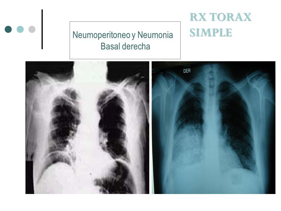 Neumoperitoneo y Neumonia Basal derecha RX TORAX SIMPLE