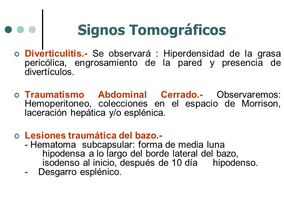 Diverticulitis.- Se observará : Hiperdensidad de la grasa pericólica, engrosamiento de la pared y presencia de divertículos. Traumatismo Abdominal Cer